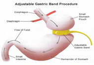 Health and Wellbeing ~ Virtual Gastric Band